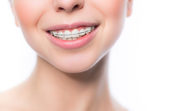How Often Do Orthodontists Have to Tighten Braces?